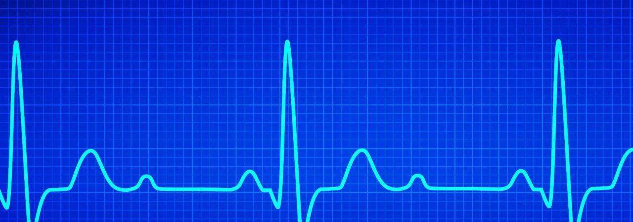 ECG-Graph